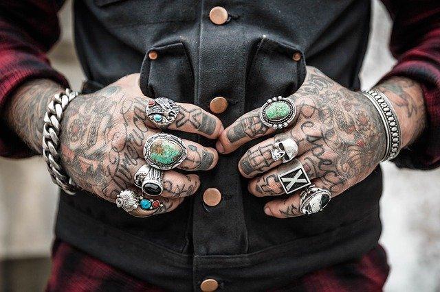 Tattoo - Entfernung nötig?